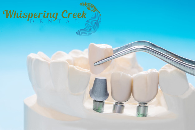 Dental fillings alternative to silver amalgam